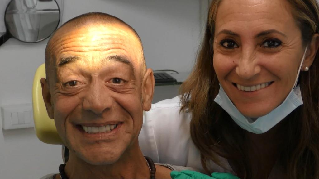 implantologia fissa senza falsa gengiva