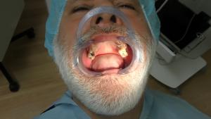 implantologia atrofica a carico immediato con denti fissi