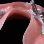 Protesi dentali per impianti zigomatici