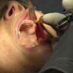 [Impianti dentali poco osso] Implantologia dentale poco osso mascellare e mandibolare - Soluzioni