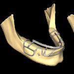 Implantologia Basale - Lista tecniche