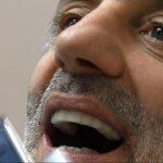 Implantologia poco osso senza osso impianti a carico immediato prezzi